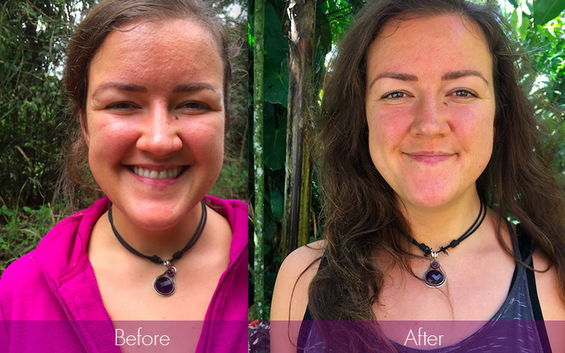 detox retreat before and after